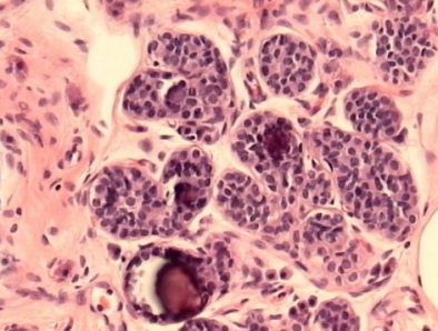 Carcinoma lobular invasivo CLI - Breastcancerorg