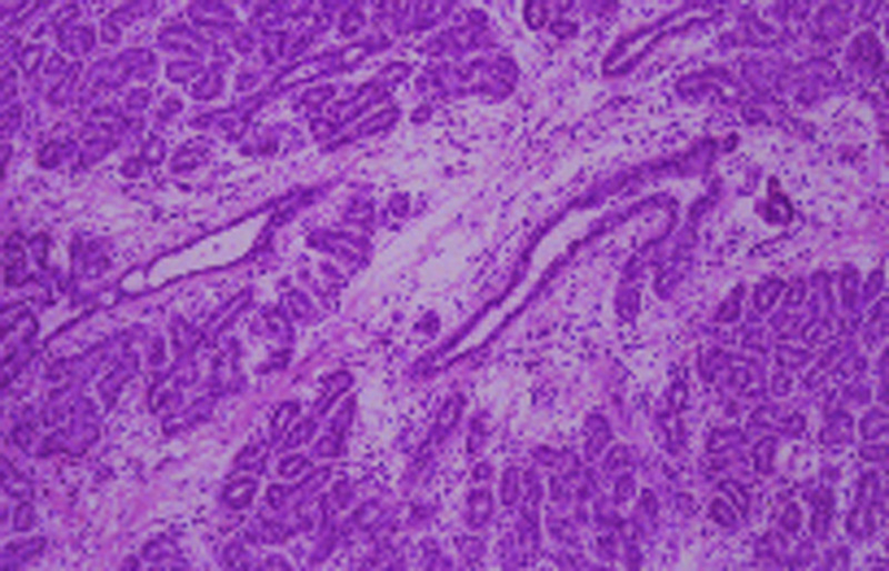 Adenoma mamario - precauciones, tratamientos