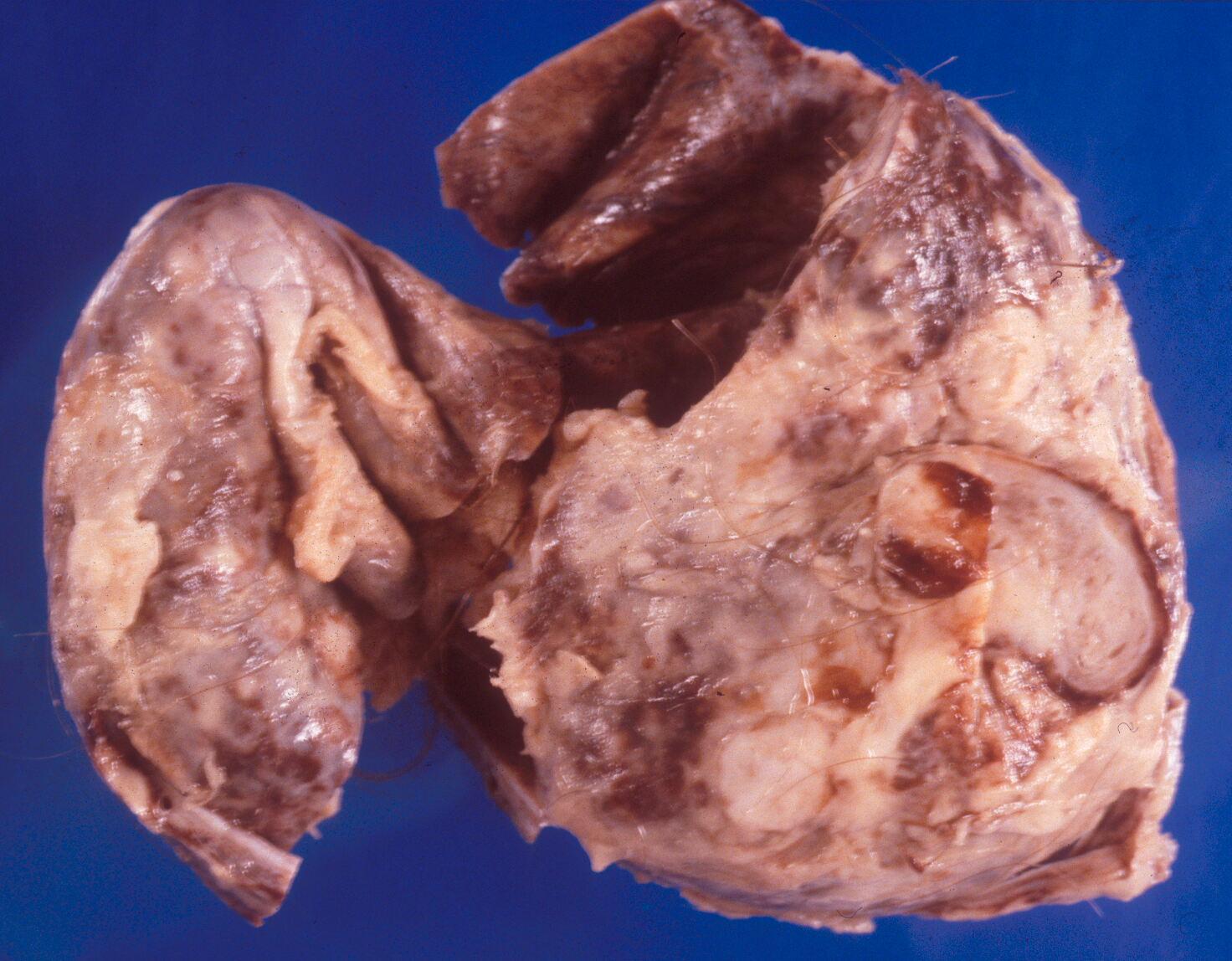 que es un quiste dermoide en el ovario