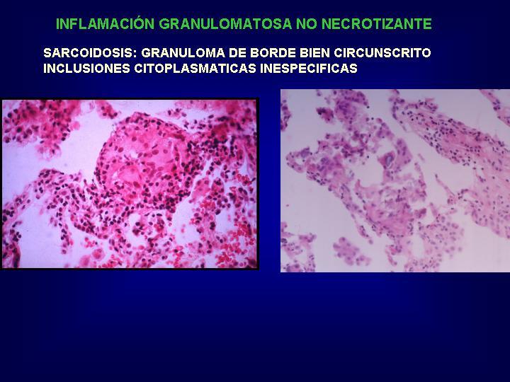 Choque Neurogenico Pdf